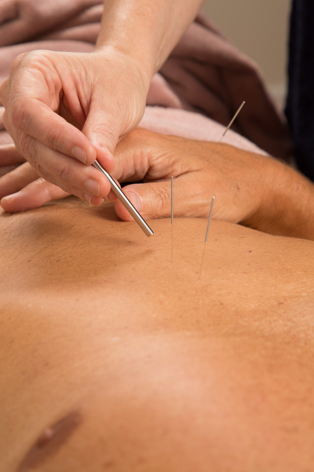 Acupuncture provided by Oncology Recovery Services Inc