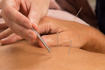 Safe handling during acupuncture